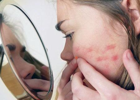 Чем лечить шрамы на лице